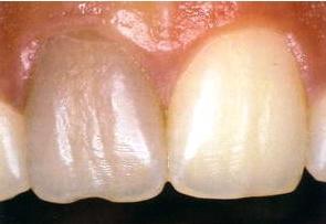 Болезни зубов потемнение зуба